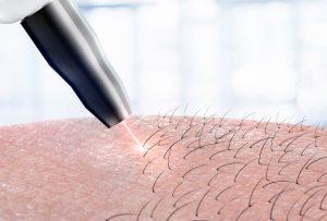 αποτριχωση laser alexandrite